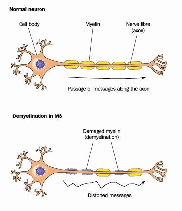 demyelination pic